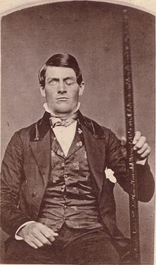 Phineas_Gage_